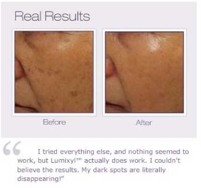 Lumixyl Topical Brightening System Before and After from Envy Medical