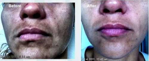Nerium AD Before and After Results