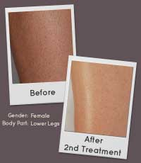 Remington i-LIGHT Pro Intense Pulsed Light Hair Removal Treatment