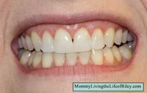 Emmi-dent 6 Ultrasonic Toothbrush After