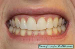 Emmi-dent 6 Ultrasonic Toothbrush Before
