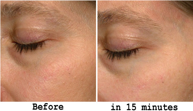 Phenomenon Topical Dermal Filler Results