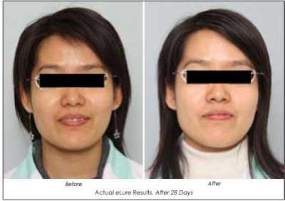 Elure Advanced Skin Lightening Products