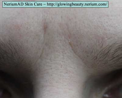 NeriumAD Before After Photos