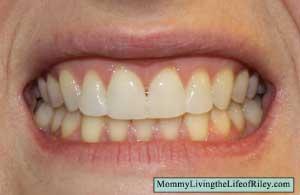 Emmi-dent 6 Ultrasonic Toothbrush Before
